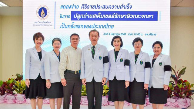 1st Time in Thailand: Siriraj Accomplished Three Stem-cell Treatments in Cornea !