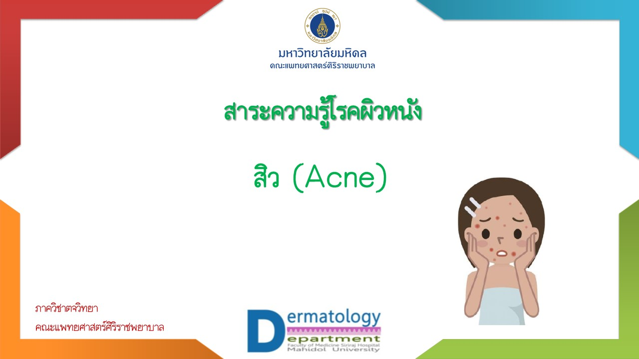 สิว (Acne)
