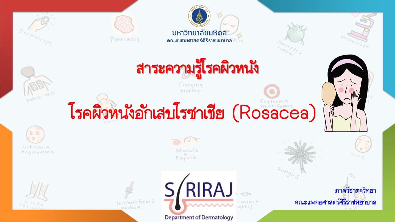 โรคผิวหนังอักเสบโรซาเชีย (Rosacea)